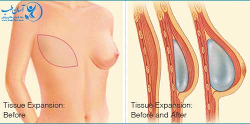 ps_recon_breast_implants