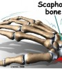 wrist_scaphoid_fracture_causes01